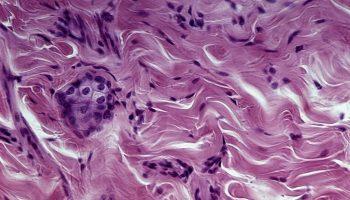 connective-tissue
